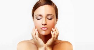 Top 10 Home Remedies for Skin Whitening