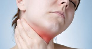 How to Remove Tonsil Stones Permanently at Home